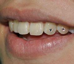 2ab19620d Teeth Jewellery in Mumbai, Maharashtra, India, Teeth Jewelry ... Tooth Gem