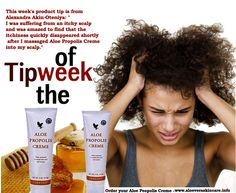 "This week's product tip is from Alexandra Akin-Oteniya: ""I was suffering from an itchy scalp and was amazed to find that the itchiness quickly disappeared shortly after I massaged Aloe Propolis Creme into my scalp."" www.aloeveraskincare.info"