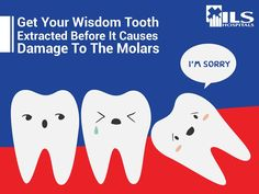 A misaligned Wisdom tooth delivers more pain than wisdom! So, extract it before it causes further damage.