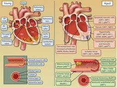Natural Healing Strategies for Hypertension Conditions Blood Heart, Cardiac Nursing, Nursing Career, Heart Function, Neck And Back Pain, American Heart Association, Growth Hormone, Cardiovascular Disease, Nursing Students