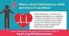 Normal Heart Rate, Irregular Heartbeat, Heart Care, Atrial Fibrillation, American Heart Association, Heart Health, Pumping, In A Heartbeat, Improve Yourself