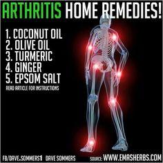 Arthritis home remedies.