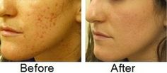 before and after scar remover