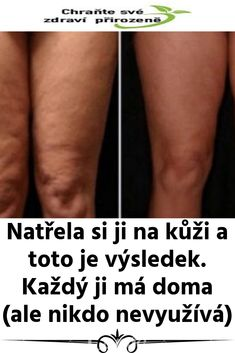 Natřela si ji na kůži a toto je výsledek. Natural Medicine, Detox, Health Fitness, Ads, Beauty, Medicine, Lemon, Cosmetology, Natural Home Remedies