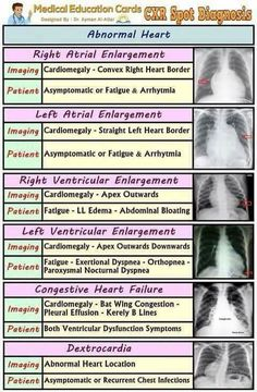 Chest X-Ray Spot Diagnosis Chart: abnormal Heart Radiology Cardiology Emergency Nursing Radiology Student, Radiology Imaging, Medical Imaging, Radiology Humor, Nursing Assessment, Cardiac Nursing, Nclex, Bola Medicinal, Examen Clinique