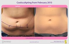 CoolSculpting Before and After.   CoolSculpting is a revolutionary non-surgical contouring treatment that freezes stubborn fat, which then is naturally eliminated from your body.