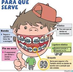 Aparelho nos dentes Mais