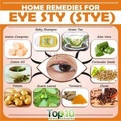 Home Remedies for Eye Sty (Stye)