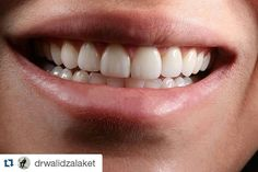 Wish u great morning - always with a smile  #SmileCenterClinic #quickresults #dentist #dentistry #dentista #teeth #tooth #smile #dental #dentalhygiene #implantology #instagood #medical #veneers #medicine #dentalcare #doctor #bleaching #estheticdentistry #followme #odontolove #odontologia #dentalsurgery #dentalstudent #aesthetics #health#patient#stomatology #identistry by cosmeticdentistrylebanon Our General Dentistry Page: http://www.myimagedental.com/services/general-dentistry/ Google My…