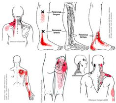 trigger points of the sacrum | Back Trigger Points