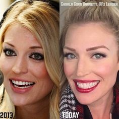 Charla Corn's #MakeoverMonday first photo was taken back in the summer of 2013. I thought I looked great with all that caked-on makeup..The second photo is my skin today. I'm completely foundation free& only wear our Peptide Powder for coverage and some blush. Aside from eyes& lip colors, of course. I'm so thrilled I found Rodan + Fields! I'm living proof that this company & these Doctors stand by their word.I use REDEFINE, REVERSE, the Amp MD Roller, Lip Serum & our Multi-Function Eye…