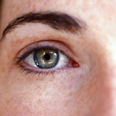 how to get rid of wrinkles under eyes permanently