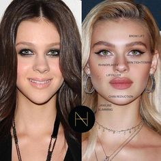 For that reason, it is smart to choose a plastic surgeon that has a minimum of 3 years of experience in cosmetic surgical treatment and at least 6 years of surgical training in total. Dermal Fillers, Lip Fillers, Chin Reduction, Nicolas Peltz, Celebrity Plastic Surgery, In Cosmetics, Rhinoplasty, Jawline, Skin Firming