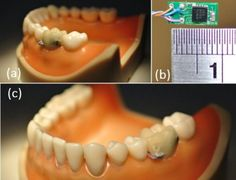 """Embeddable """"fit bit"""" for teeth.  The eating, drinking and smoking police are coming to a dentist near you...."""