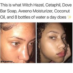 1 lovely skin care pin tip for one shiny face. Got to study the skin care tips pin number 7577823788 here. Schul Survival Kits, Beauty Hacks For Teens, Clear Skin Tips, Clear Skin Face, Def Not, Face Skin Care, Facial Care, Flawless Skin, Look At You