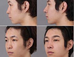 """Check out new work on my @Behance portfolio: """"Nâng mũi bọc sụn tại Mika Vũ Thái có an toàn không?"""" http://be.net/gallery/34392837/Nang-mi-bc-sn-ti-Mika-V-Thai-co-an-toan-khong"""