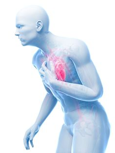 Prinzemetal's angina, or coronary artery spasm, is chest pain due to severe coronary artery spasm