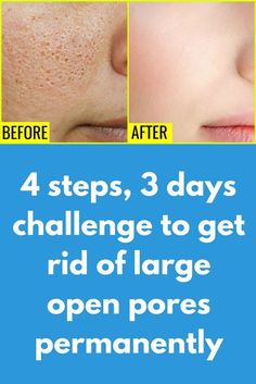 4 steps, 3 days challenge to get rid of large open pores permanently is part of fitness If you are suffering from Open Pores, Large Pores than you MUST check this remedy here I have shared a very Si - Big Pores On Face, Large Pores On Nose, Face Skin, Get Rid Of Pores, Minimize Pores, Clear Pores, Clear Skin, How To Close Pores, Make Pores Smaller