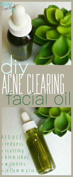 Acne Clearing Facial Oil DIY