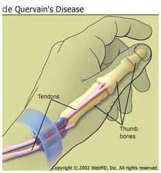 de Quervain's Disease...aka tendonitis of the thumb from overuse, knitting, etc.  (Important information for every knitter/crafter).