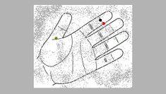 Onnuri la acupuntura