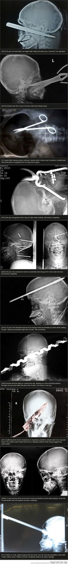 Some of the most bizarre X-Rays…
