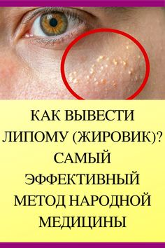 Health Remedies, Home Remedies, Facial Massage, Skin Problems, Arthritis, Health And Beauty, Health Tips, Healthy Living, Health Fitness