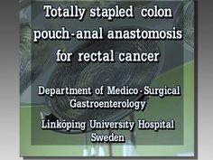 Totally Stapled Colon Pouch-Anal Anastomosis for Rectal Cancer - Surgery - WATCH VIDEO HERE -> http://bestcancer.solutions/totally-stapled-colon-pouch-anal-anastomosis-for-rectal-cancer-surgery    *** colon cancer surgery ***   Produktion 1995. En operationsvideo som beskriver ovan rubricerade operation. I programmet finns också bilder från ytterligare en operation av samma typ av patient i en reprisdel samt unika bilder tagna med rektoskop på sårområdet efter stapling.