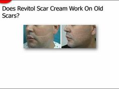 treatment on pinterest scar treatment laser scar removal and acne