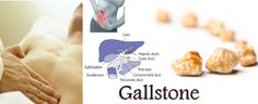 One of the most common and rather painful complain among people in today's times, is the gallstone pain. Deceiving as these substances are, they can be lurking inside our gallbladder for months while we apparently have not the slightest idea of it until they start throwing tantrums like the menacing boys and show their true colors.