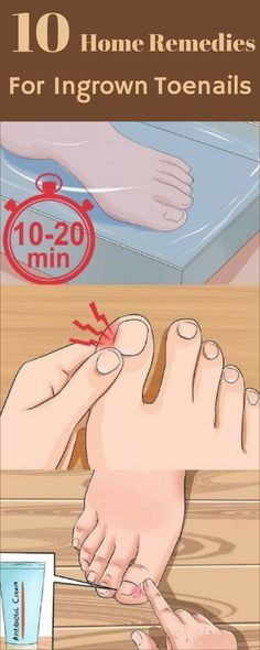 Here Are 10 Remedies for Ingrown Toenails! – Healthy Beauty Ways Here Are 10 Remedies for Ingrown Toenails! – Healthy Beauty Ways Ingrown Toenail Remedies, Toenail Pain, Ingrown Toe Nail, Home Remedies, Natural Remedies, Health Remedies, Make Up Tutorials, Little Presents, Thinking Day