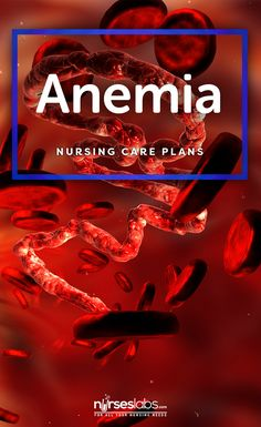 4 Anemia Nursing Care Plans  Visit: https://nurseslabs.com/4-anemia-nursing-care-plans/