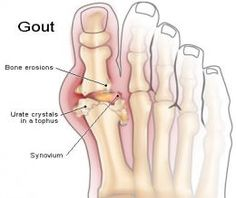 Relieve your gout symptoms with apple cider vinegar, raw honey and water.