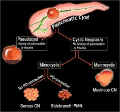 Pancreas pathology