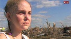 Sam Hall - Chasing Tornadoes With Epidermolysis Bullosa