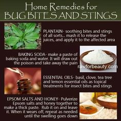 Home remedies for Bug Bites