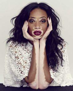 Don't care what anyone says. She is gorgeous  #blackwomen # vitiligo