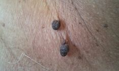 Skin tags: Causes and treatment brown color armpits - Brown Things Anti Ride Naturel, High Cholesterol Levels, Polycystic Ovary Syndrome, Metabolic Syndrome, Skin Tag Removal, Growth Factor, Hormonal Changes, Dental Floss, Natural Treatments
