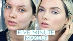 Maquillaje para cubrir el acné Acne Breakout, How To Get Rid Of Acne, Clear Skin, Healthy Tips, Reading, Makeup, Bright, Easy, People