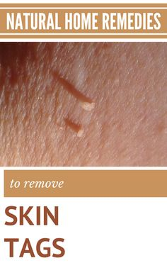 Natural Home Remedies To Remove Skin Tags