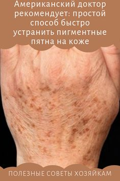 Pigmentation on the skin and how to get rid of it .- Pigmentation on the skin and how to get rid of it spots - Fitness Tips, Health Fitness, Clean Shoes, How To Get Rid, No Equipment Workout, Natural Health, Health Tips, Beauty Hacks, Face