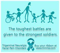 Trigeminal Neuralgia - soldiers!