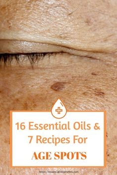 21 Best Essential Oils for Age Spots on Face and Hands No one wants age spots. But they happen. So how can you naturally get rid of age spots on your face? Here are some essential oils you can use for age spots to help reduce the discoloration and lead to Age Spots Essential Oils, Essential Oil Uses, Doterra Essential Oils, Young Living Essential Oils, Age Spots On Face, Brown Spots On Face, Dark Spots, Young Living Oils, Oil Benefits