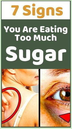 Just 7 Signs You Are Eating, Too Much Sugar!!! Healthy Lifestyle Tips, Healthy Tips, Stay Healthy, Healthy Desserts, Healthy Habits, Healthy Quotes, Healthy Brain, Keeping Healthy, Healthy Women