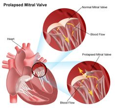 Generally, mitral valve prolapse (MVP) is a systolic billowing of one or both mitral leaflets into the left atrium during systole ± mitral regurgitation (MR). Nursing School Tips, Medical School, College Nursing, Mitral Valve Regurgitation, Mitral Valve Prolapse, Heart Valves, Family Nurse Practitioner, Open Heart Surgery, Biology