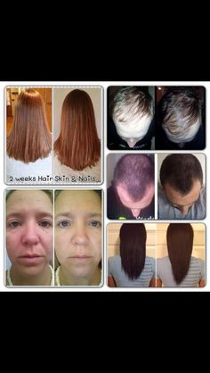 Amazing Skin Hair and Nail pills. I have been on them for a month and my hair is 3x healthier now. AMAZING #ItWorks