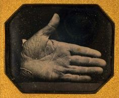 """A man's hand branded for freeing slaves, 1845 (Two S's are branded beneath the thumb- this stood for """"slave stealer"""" to those who inflicted the punishment. To others, it meant """"slave savior""""). The inscription on the back of the case reads: This Daguerreotype was taken by Southworth Aug. 1845. It is a copy of Captain Jonathan Walker's hand as branded by the U.S. Marshall of the Dist. of Florida for having helped 7 men to obtain """"Life Liberty, and Happiness."""""""