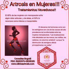 Artrosis en mujeres. Osteoartrosis vs osteoartritis degenerativa, roce, limitación al movimiento, crujido, bloqueo articular. Visítenos en la Clínica de Artrosis y Osteoporosis www.clinicaartrosis.com PBX: 6836020, Teléfono Movil: 317-5905407 en Bogotá - Colombia.