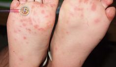 Japão teme epidemia da doença mão-pé-boca. Especialistas japoneses em doenças infecciosas estão alertando que a atual epidemia da doença da mão-pé-boca pode