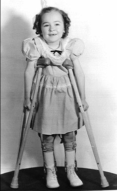 Several classmates had polio---The polio vaccine I recieved as a child was contaminated. I know that one other little girl in my class also got polio. I don't know how many children passed away from taking the polio shot. I can't seem to get the onformation. I guess they tried to keep it hush hush.